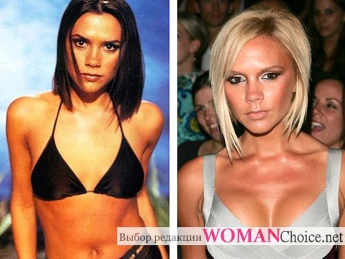 Breast plastic surgery - photo