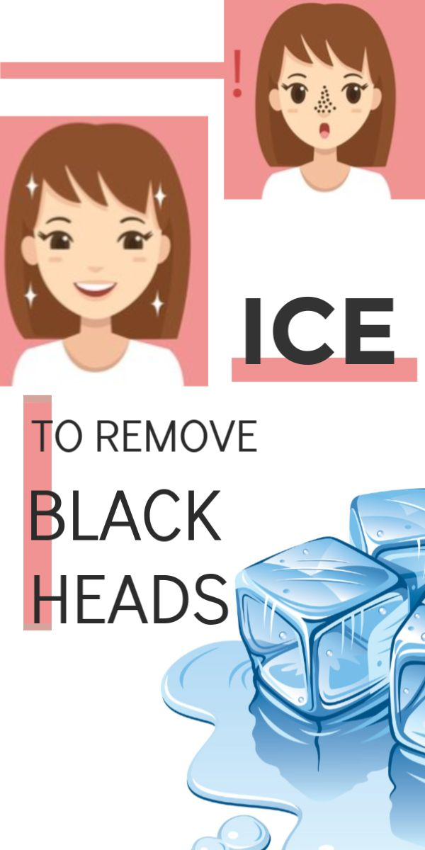 Simple home remedy to remove blackheads using ice cube