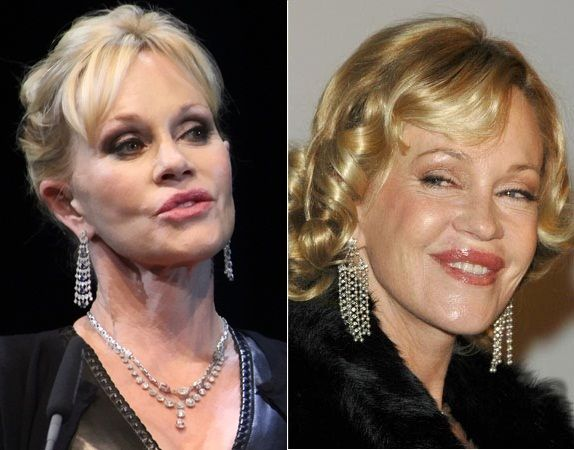 Melanie Griffith Before and After Surgery Always interesting what you can find when you type in surgeons and other related terms