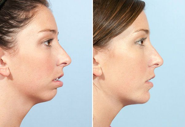 filler for chin facial