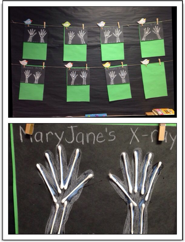 COMMUNITY HELPERS WEEK.  Handprint X-Rays.  Black paper with white crayons and…