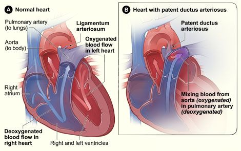 "patent ductus arteriosus- Another Sean   ""issue"" that was repaired during his first open heart surgery @ 9 days old."