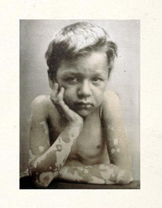 Oscar G. Mason. Medical and surgical photographer at Bellevue Hospital between 1856 and 1906. Unknown Boy - Leprosy. Patient of Dr. Sherwell. Born in the West Indies. Improved under treatment but died of an intercurrent disease. Enlarge: https://pinterest.com/pin/287386019948928149/
