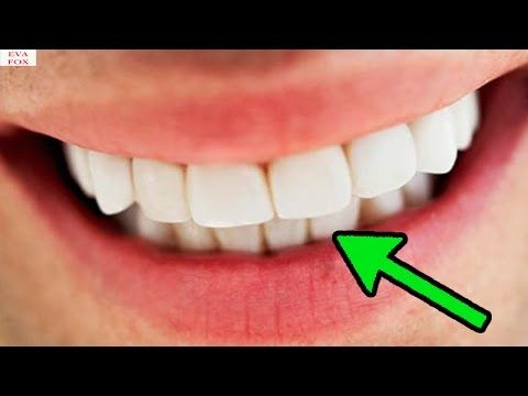 Goodbye to dental caries in 5 days thanks to this discovery; Goodbye to ...