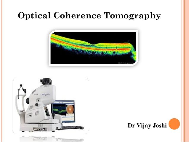optical coherence tomography thesis This dissertation develops a novel multi-contrast optical coherence tomography (mc-oct) technique for the application of brainwide imaging and architectural mapping in 3d at high spatiotemporal resolution, with an emphasis on the connective tracts.