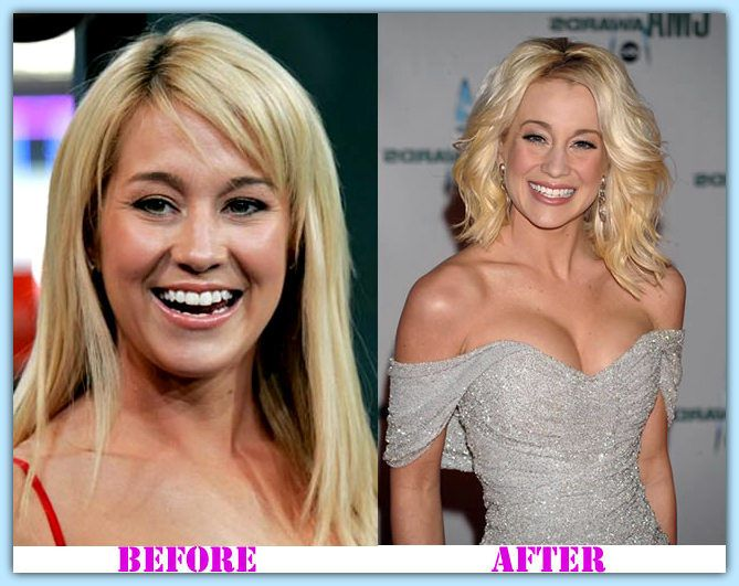 Celebrities before and after breast enlargement