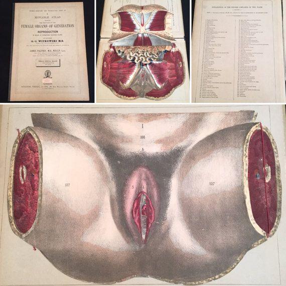 Rare 1880s Interactive Model of the Female Reproductive
