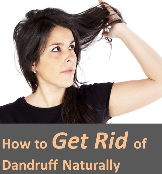 how to avoid dandruff permanently