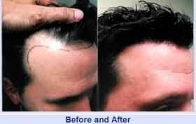 The average cost of Stem Cell Fue Hair Transplant in Dubai, Abu Dhabi or UAE can range between $4 to $10. However exact cost can only be determined by having a thorough consultation with a physician.