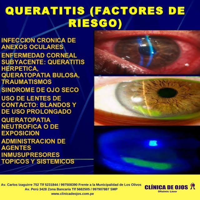 Clínica de Ojos Oftalmic Láser: QUERATITIS (FACTORES DE RIESGO)
