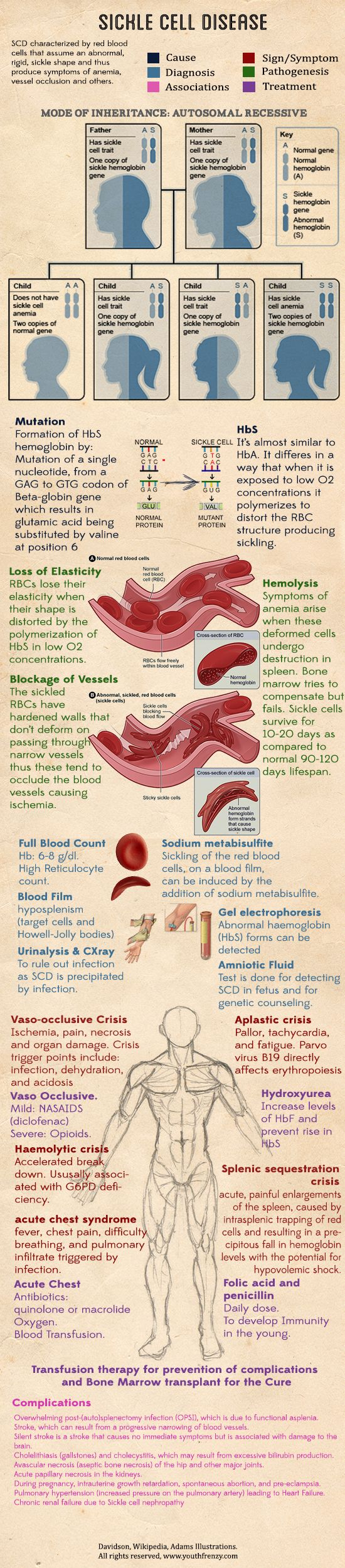 17 best images about nursing school nursing sickle cell disease after seeing a few cases of true sickle cell crisis good
