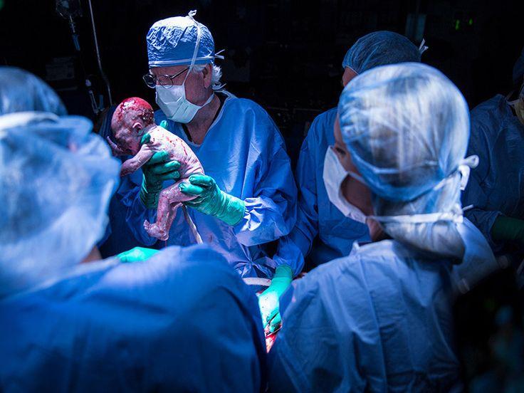 #Hito médico: nace el primer bebé de un útero trasplantado (Video) - Pachamama radio 850 AM: Pachamama radio 850 AM Hito médico: nace el…