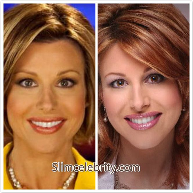 Pin By Celebrity Style On Celebrity Plastic Surgery Before