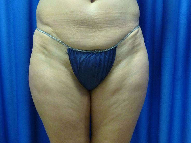 What Are Cellulites Cellulite is my bug bare