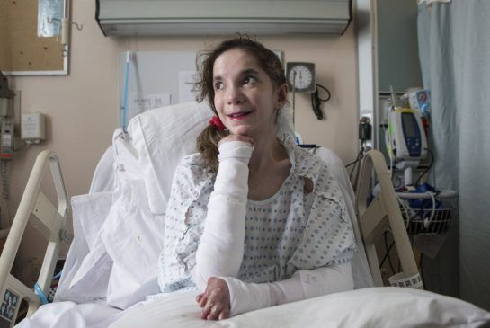 Mary Haddad, who suffers from the rare skin disorder epidermolysis bullosa, lies on her bed at Toronto's St. Michael's Hospital on June 25. ...