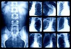 solunum sistemi hastalıkları nedenleri