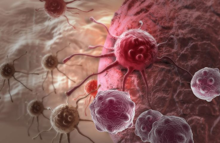 Do You Know Facts About What Is Blood Cancer? : What Is Blood Cancer? Blood cancer is a type of cancer that attacks the lymphatic system, blood or bone marrow. There are three types of blood cancer: multiple myelomas, leukemia and lymphoma. Blood cancer causes cells to grow abnormally in either lymphatic system or the bone marrow affecting...