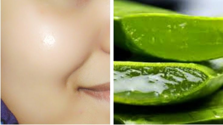 How To Get Clear, Glowing, Spotless Skin By Using Aloe Vera GelRemake