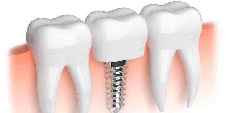 dental implant cost in surrey https://surreydentalimplants.ca/dental-implant-costs/