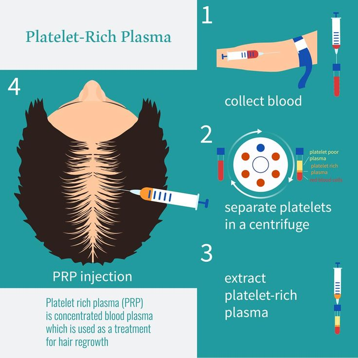 Platelet-Rich plasma is a newly developed process to assisted hair restoration operations. But, what does PRP stand for? PRP is an abbreviation for platelet-rich plasma, which is a technique to enhance the recovery, healing and hair growth. Surgeons use this process before hair transplant and post it.