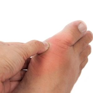 Myths about gout are hampering its treatment