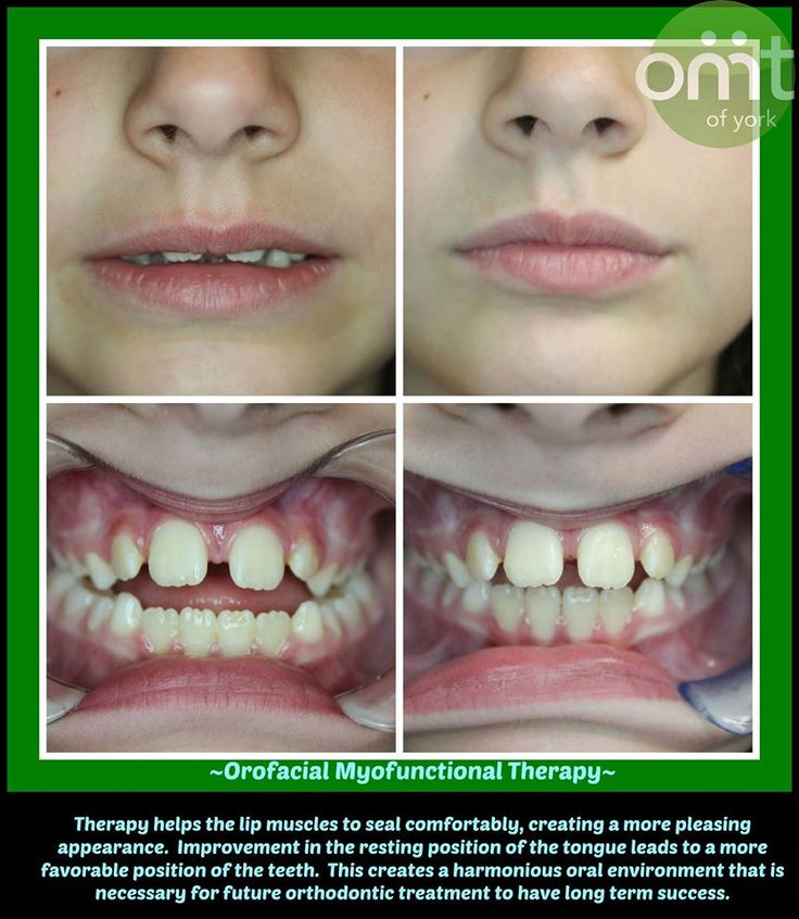 27 best images about Tongue Thrust Correction on Pinterest ...