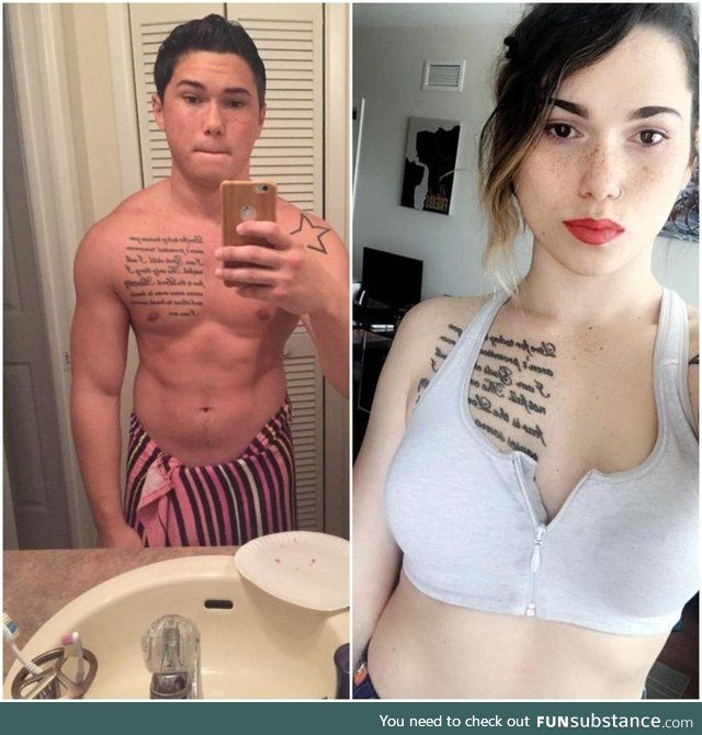 Gender reassignment female to male pictures-8368