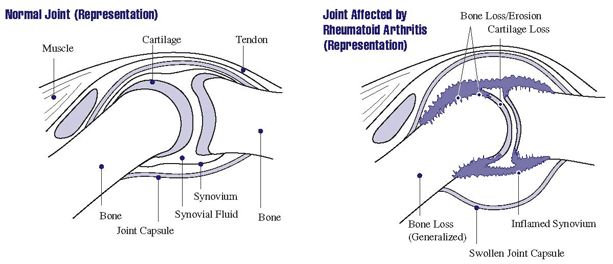 Picture of a Normal Joint and a Joint affected by Rheumatoid Arthritis.  Handout on Health: Rheumatoid Arthritis