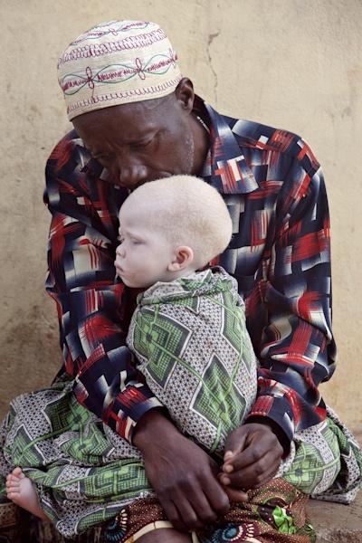 Albino child from Tanzania NEGRITOS Negro black beauty beautiful afro / Ms. Ampela, a white oak hamadryad