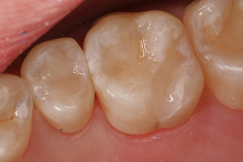 29 Best Tooth Color Fillings Lake Worth Florida Images
