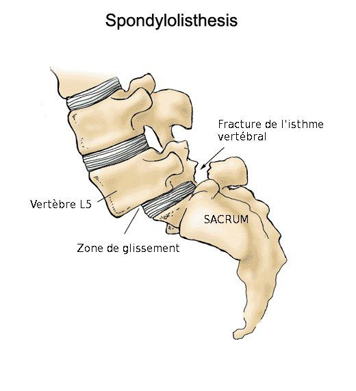 ankylosing spondylothesis A chronic disease, ankylosing spondylosis is a form of arthritis associated with a class of rheumatic diseases called seronegative spondyloarthropathies with as, the.