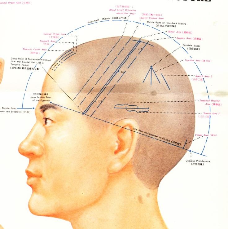 Scalp Acupuncture | Shiatsu | Pinterest