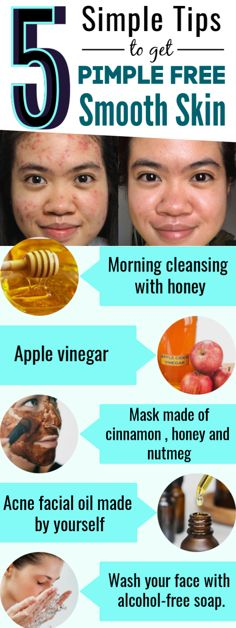 5 Simple tips to get Acne and pimple free smooth skin