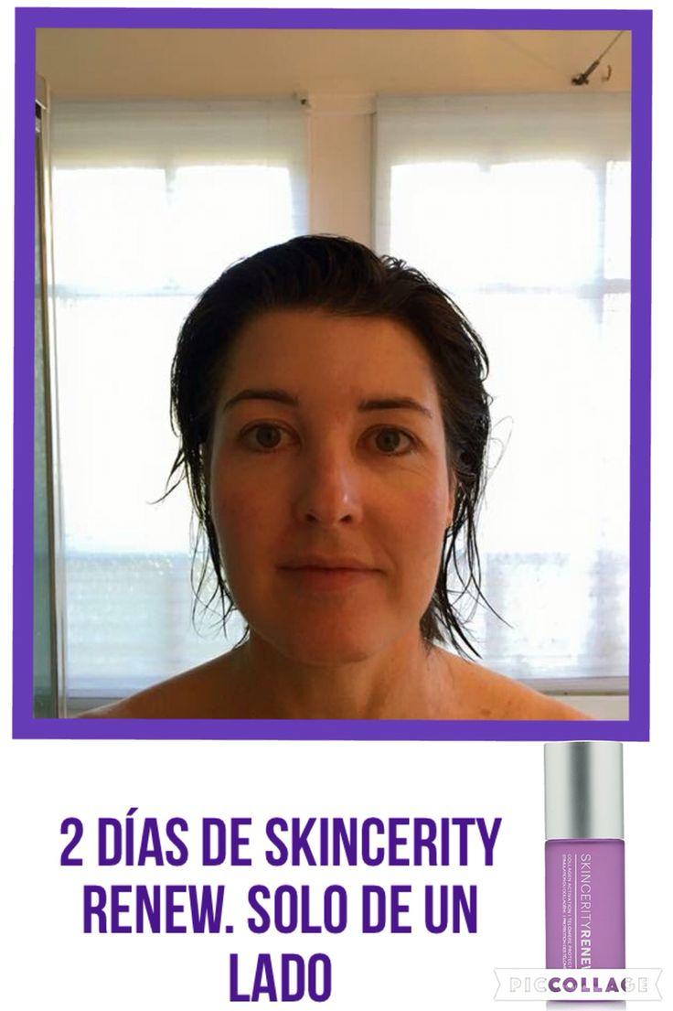 Skincerity RENEW