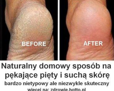 zdrowie.hotto.pl-pekajace-piety-domowy-sposob