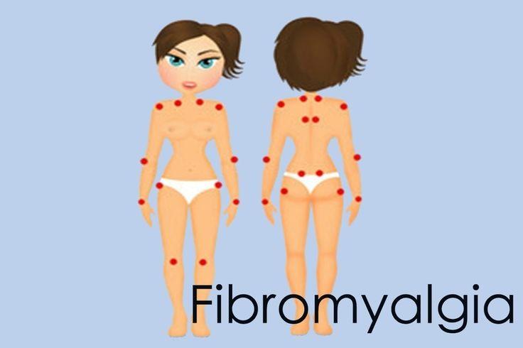 Fibromyalgia Quiz - Nursing Matters