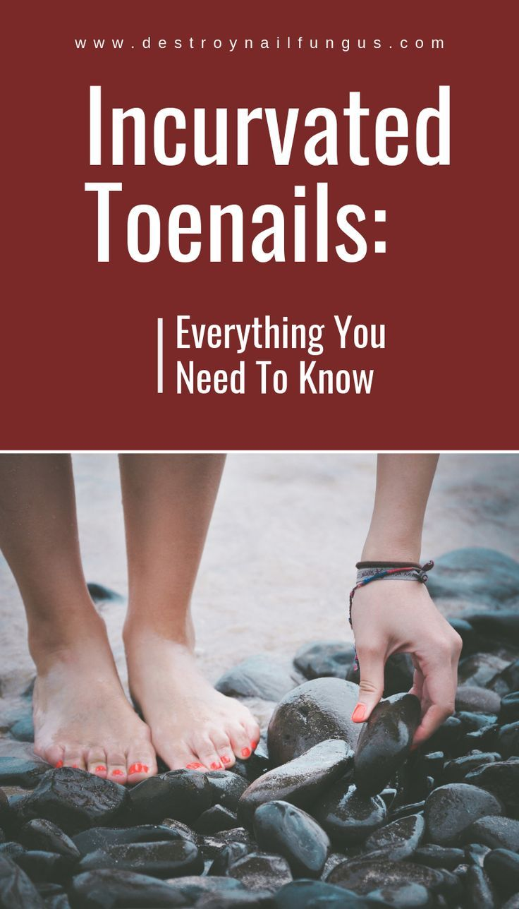 Incurvated Toenails: What Really Works To Fix Them Once And For All?