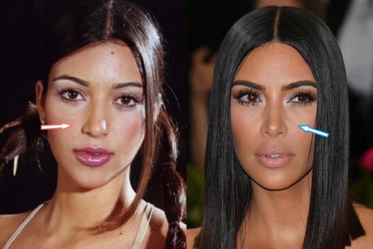 20 Hot Celebrities Nose Jobs You Might Have Not Noticed