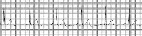 A normal heart rhythm is called normal sinus rhythm (NSR for short). An NSR will have a heart rate (this is the same as the pulse) between 50 and 100 beats per minute and a normal impulse formation from the SA node ( P wave). In the absence of any abnormalities, a completely normal rhythm will also have a normal PR interval (interval from the beginning of the P wave to the beginning of the QRS of .12-.20 seconds), a normal QRS width (time it takes for the ventricles to contract of .04-.10…