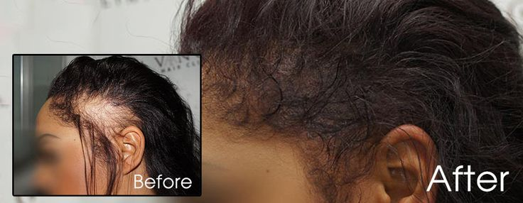 Wearing longer hair with scalp micropigmentation is possible too. Contact us today for your free and friendly consultation#femalehairloss #hairlosswomen #hairrestorationwomen #hairlosstreatments