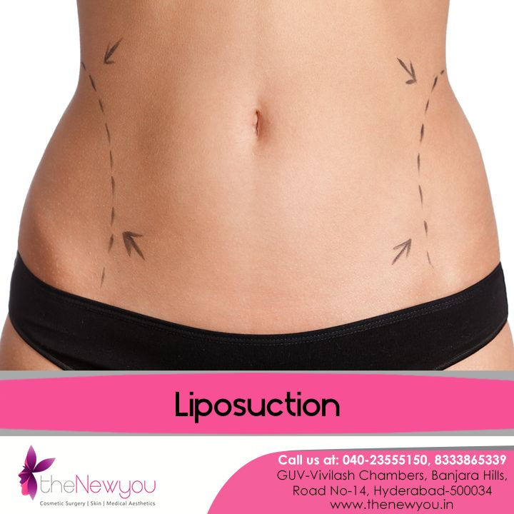Now achieving the perfectly #shapedfigure and #flattummy you always wished for is possible with the advanced #LiposuctionTreatment from theNewyou.