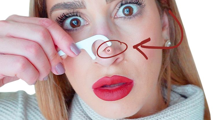 One Weird Blackhead and Whitehead Removal Hack That Actually Works | Hack My Life #12 - YouTube