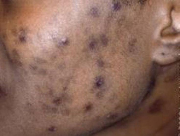 puistjes bij donkere huid