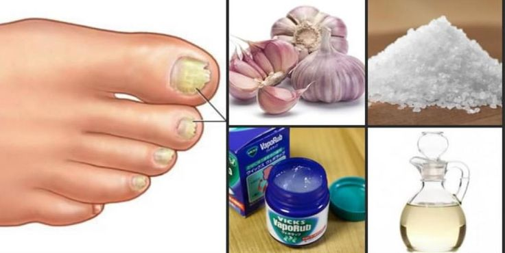 5 remédios caseiros para remover fungos das unhas As mulheres são rotineiramente expostas aos fungos pelo uso de unhas de acrílico, mas o os homens que sofrem mais este problema, assim que estes remédios caseiros são destinadas a ambos os sexos. Outr