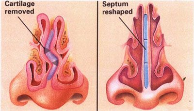 Septoplasty - To correct a deviated septum. Improving breathing + sinus drainage. Nasal septum - The structure made of bone + cartilage which separates the nasal cavities