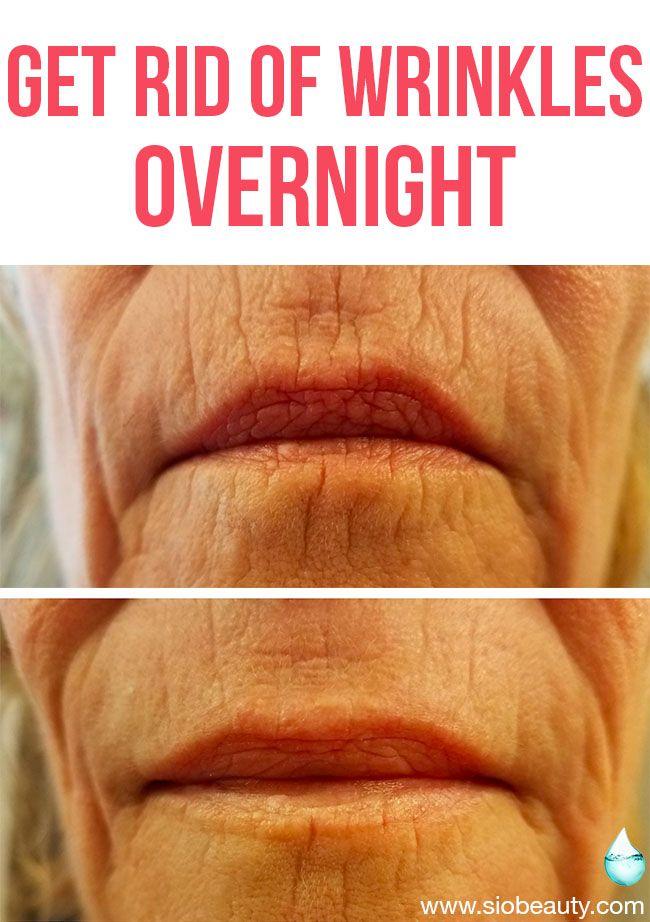 SiO Super LipLift : (4 Pk) | Get Rid of Wrinkles