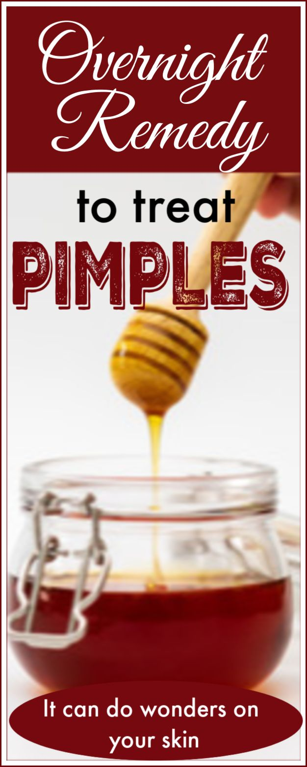 How to use honey to treat pimple overnight