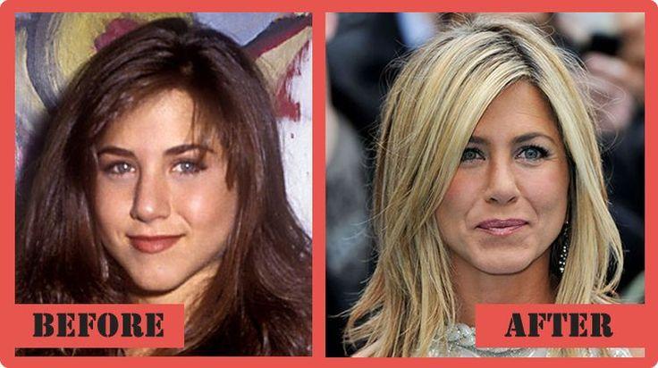 jennifer aniston Plastic Surgery Before and After Jennifer Aniston Plastic Surgery #JenniferAnistonPlasticSurgery #JenniferAniston #celebritypost