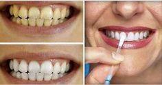 Esta é a Forma mais Simples e Barata de Clarear os Dentes em Casa - Apenas 1 Ingrediente!   Resumo da Moda