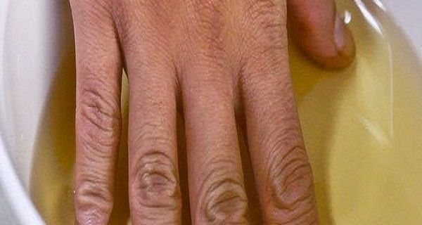 She put her hands in apple cider vinegar twice a week; you will not believe the effect is achieved!